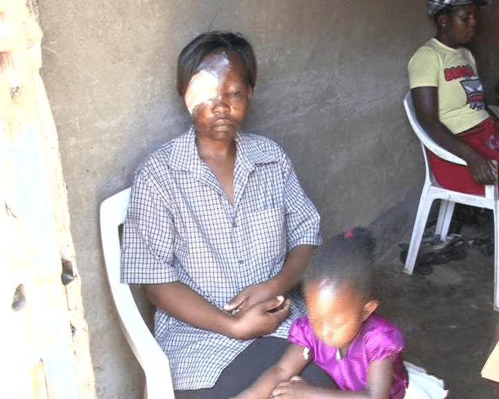 Woman loses eye, teeth over Ksh150